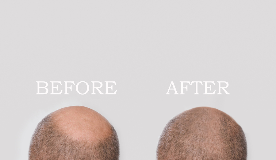How to Regrow Hair on Bald Spot in a Matter of Weeks