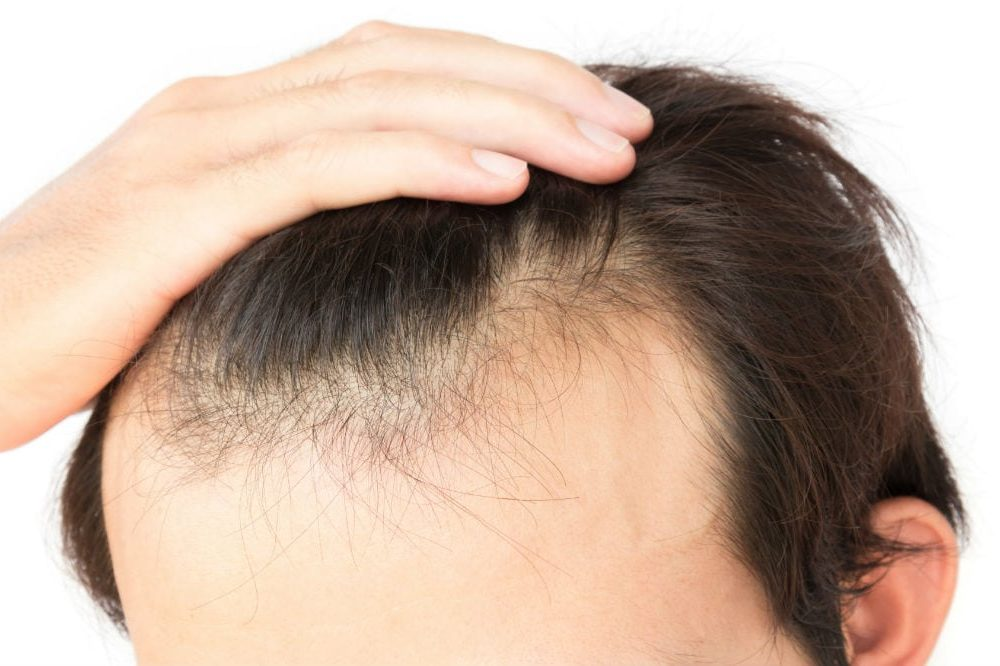 How to Prevent Hair Loss in Men: Effective Tips and Tricks