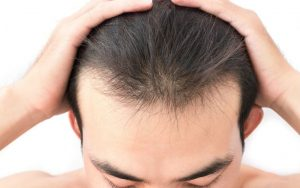 Best Hair Growth Shampoos Designed for Men and Women