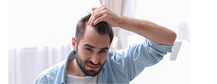 man struggling with hair loss