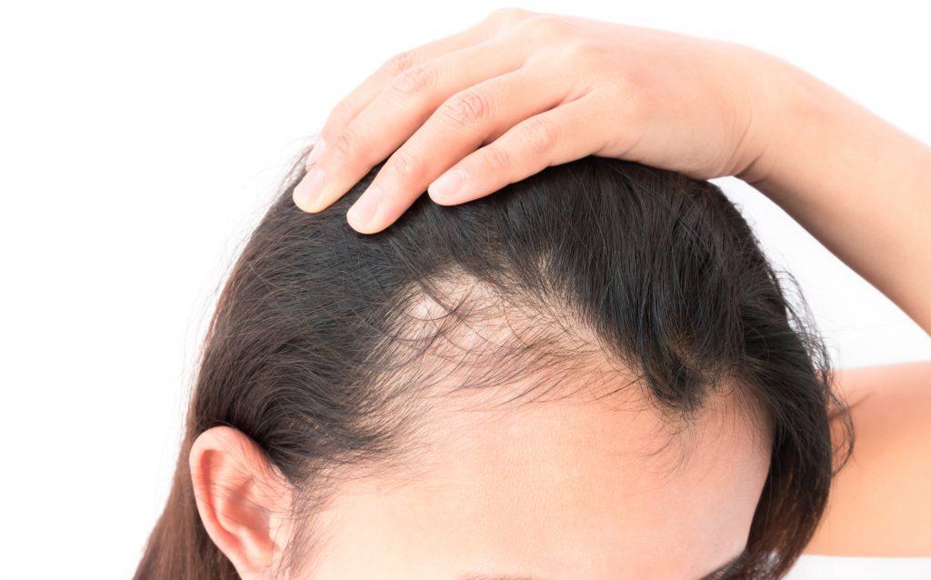 woman hair thinning