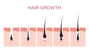 laser light therapy hair growth follicle