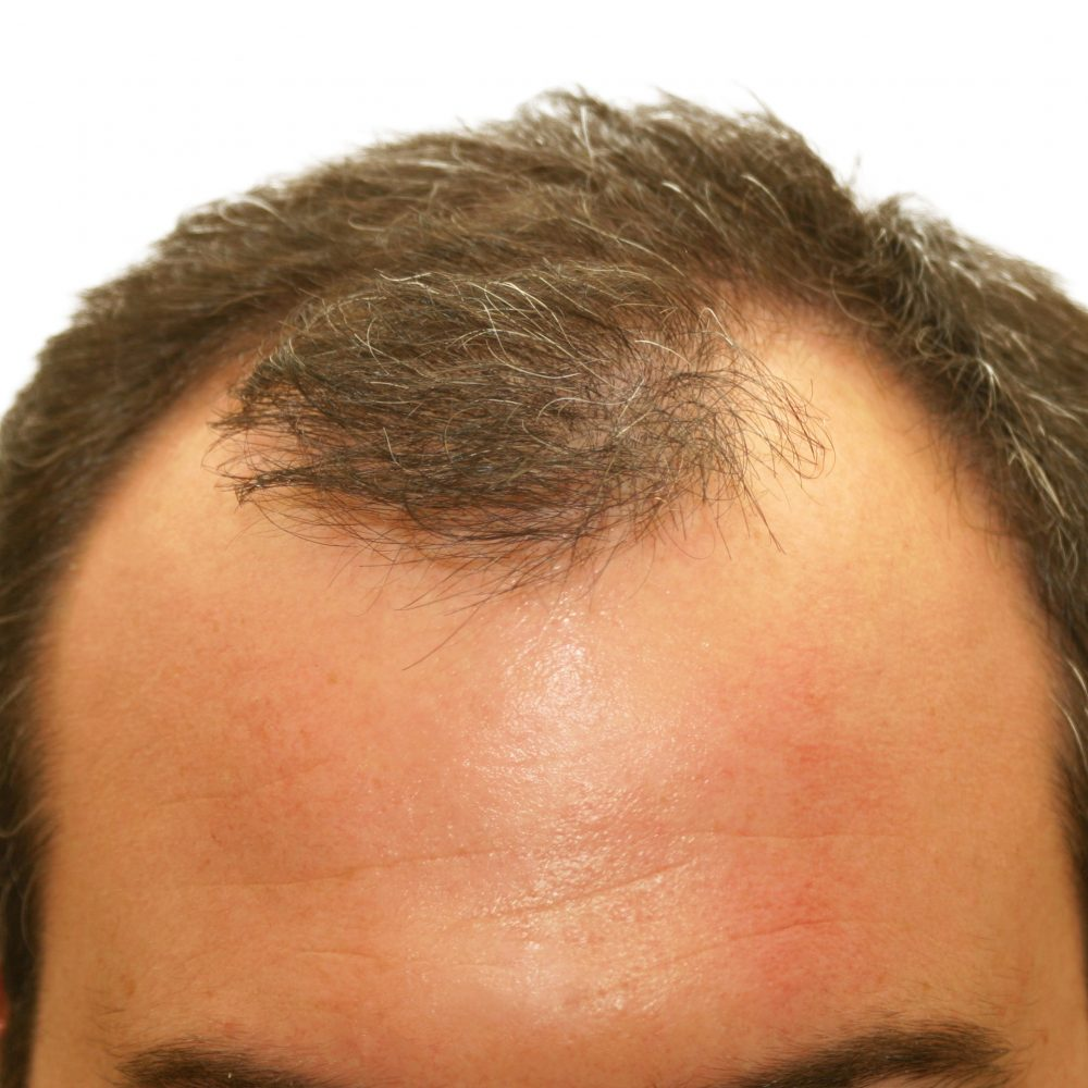 man needing to use laser caps for balding head