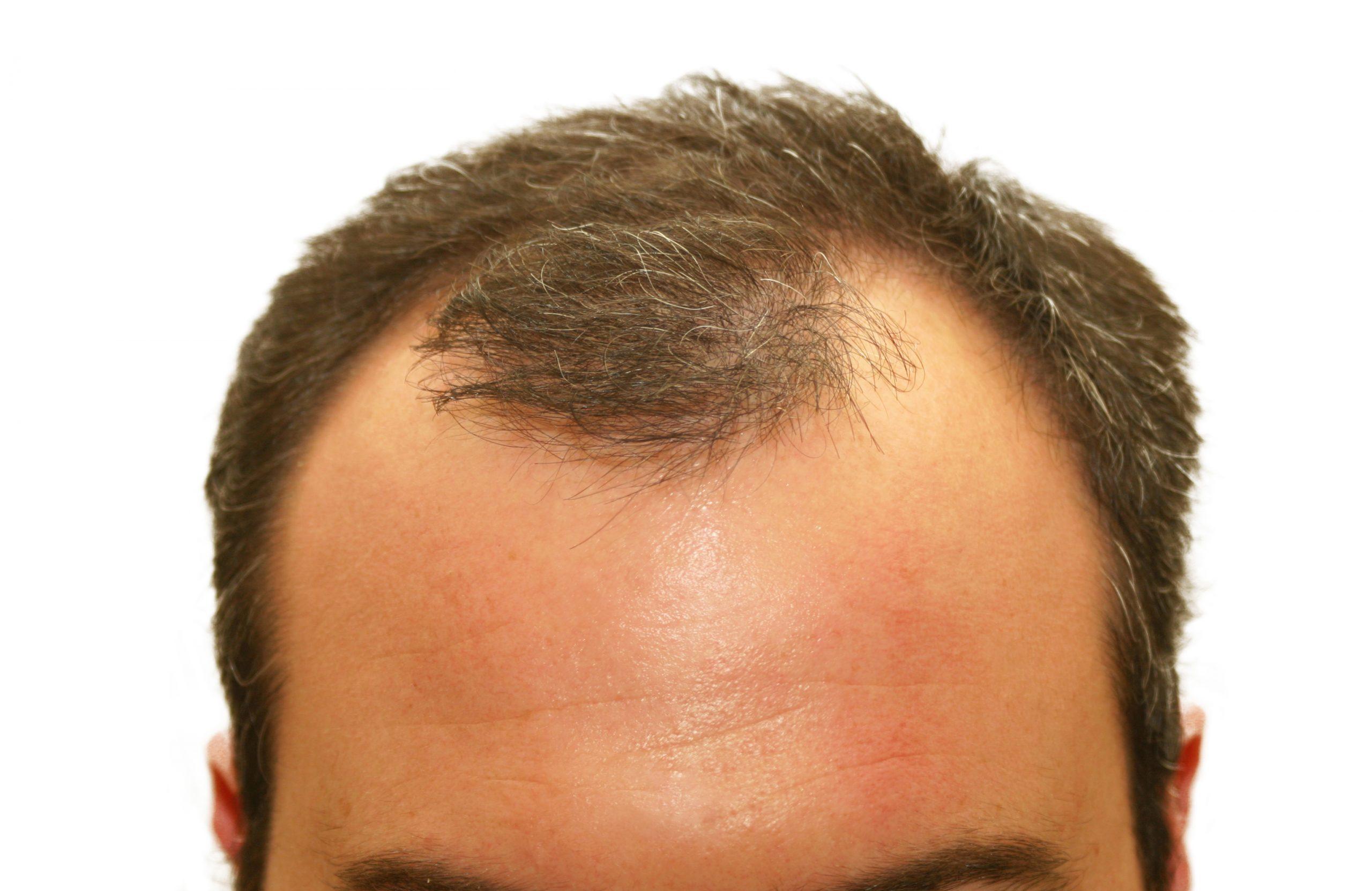 man needing to use laser caps for balding head