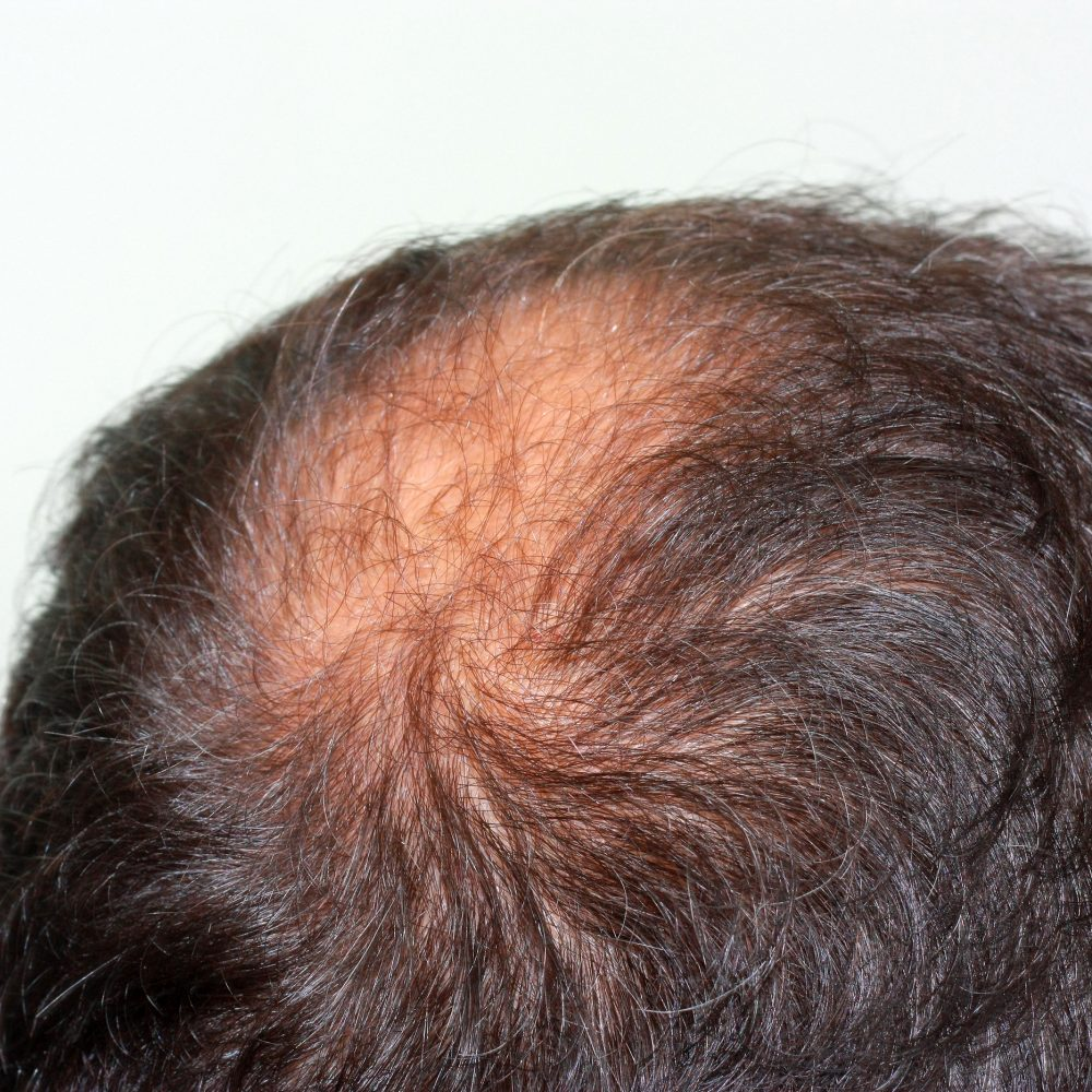 Hair Transplant vs. Laser Treatment