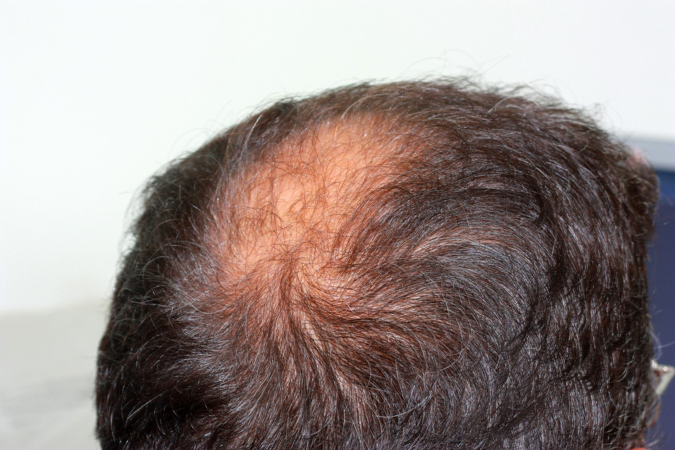 hair transplant vs laser treatment