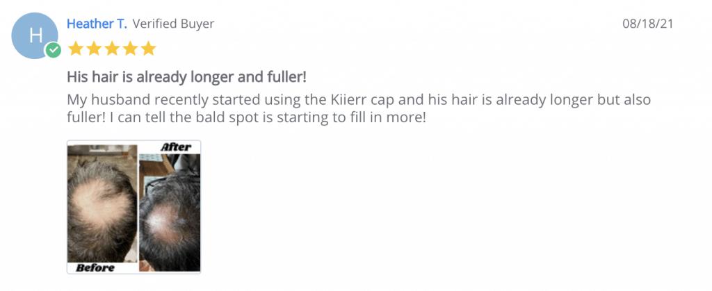 Heather - kiierr laser cap MD testimonial