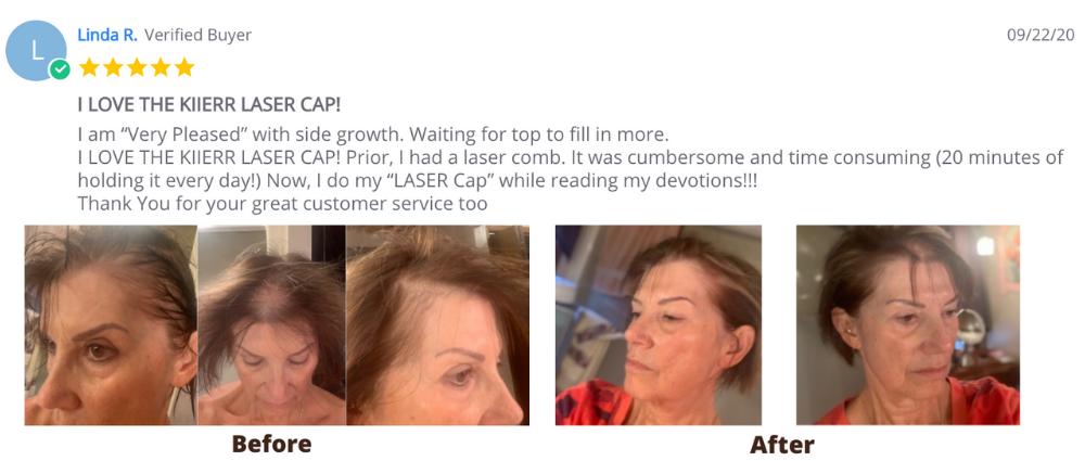 Linda - Kiierr Laser Cap Testimonial Image