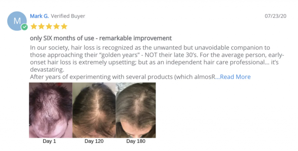 kiierr laser hair growth before and after